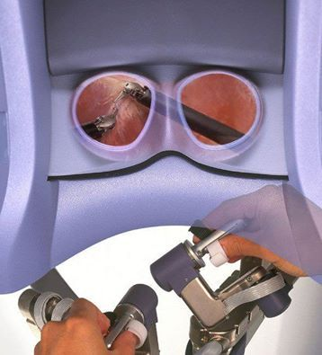 Robotic surgery provides a MINIMALLY INVASIVE, precise way to operate on the most complex problems including endometriosis, uterine fibroids and pelvic organ prolapse. The visualization for robotic surgery is not only 3-dimensional but ultra high definition as well.   Visit our website for more information: http://www.womensexcellence.com/robotics/robotics-about-us/