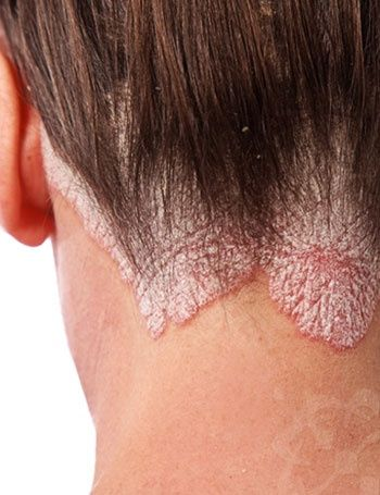 Itchy Scalp Is One Of The Most Common Conditions That