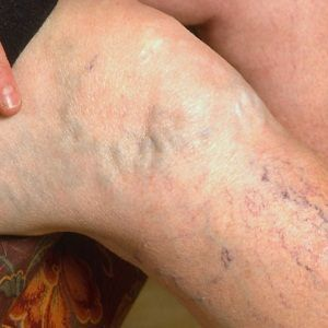 How To Get Rid Of Spider Veins Naturally?