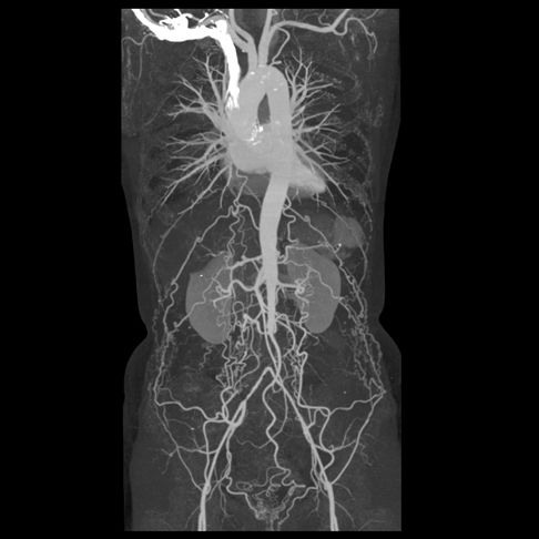 Occluded Aorta: The abdominal aorta is occluded at the level of the inferior mesenteric artery. Multiple collateral vessels are seen reconstituting the iliac arteries.