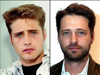 Chatter Busy: Jason Priestley Plastic Surgery