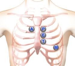 auscultation location areas & info on what could be going wrong