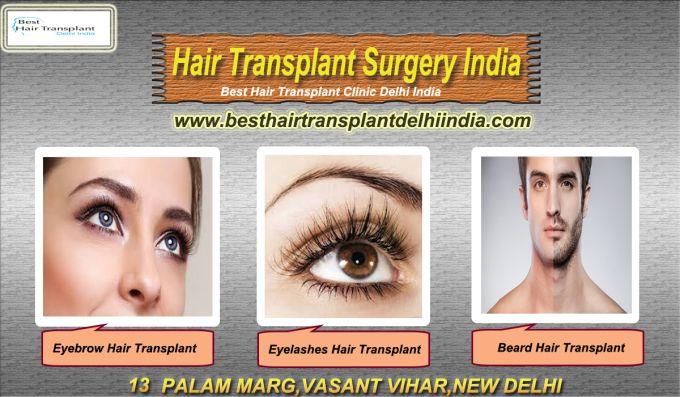 Best Hair Transplant Delhi India: Hair Transplant Surgery - Regain Hair Growth!