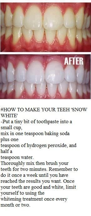 teeth whitening home remedy... Ok when I first saw this I thought no way, its gonna have a nasty taste and my mouth is gonna fizz from the peroxide and baking soda, BUT it didn't AND it actually made my teeth whiter, without leaving a nasty taste in my mouth. Deff worth trying!!!!: