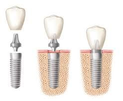 Perfect Dental Implant Provides the best dental implants in Toronto, GTA, and surrounding areas. Our procedures include: All-On-6™ (All On Six), All-On-4™ (All On Four), Image Guided/Computer Guided Dental Implants, Implant Supported Dental Bridges, Denture Implants.  We also cover costs of dental implants in depth in our site to educate our patients about the real dental implants costs. If you have questions, request for more information by calling us or filling out a form.