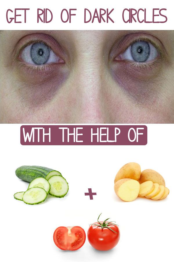 how to get rid of skin tags through diet
