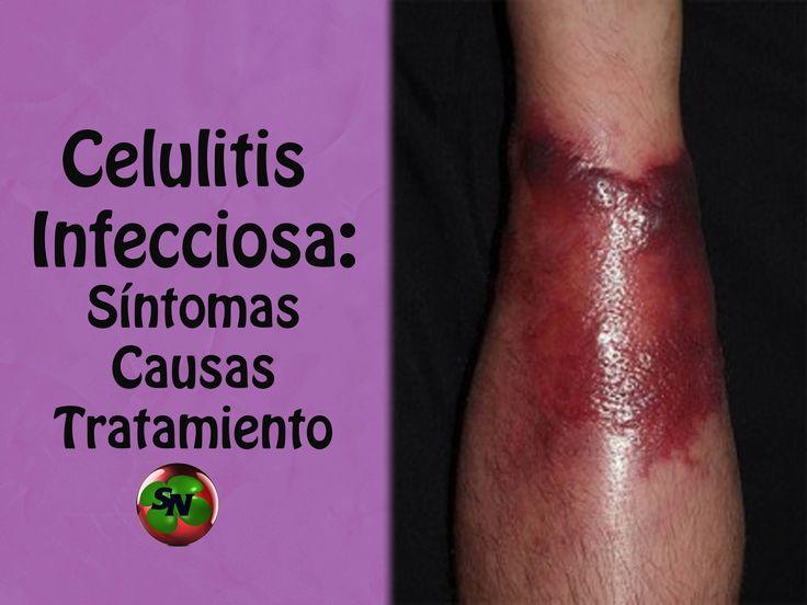 Celulitis infecciosa: Síntomas, causas, factores de riesgo y tratamiento