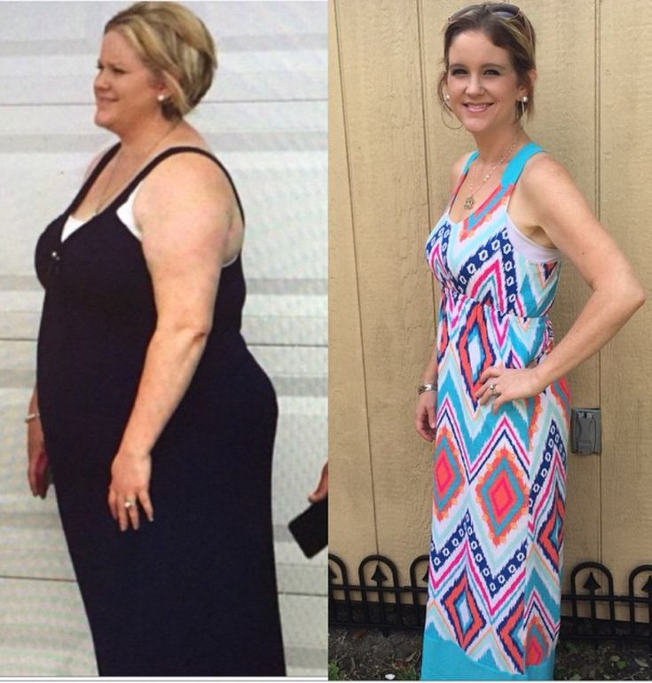 vsg weight loss pics before after
