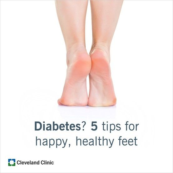From heel to toe, keep your diabetic feet happy with these 5 tips. #diabetes