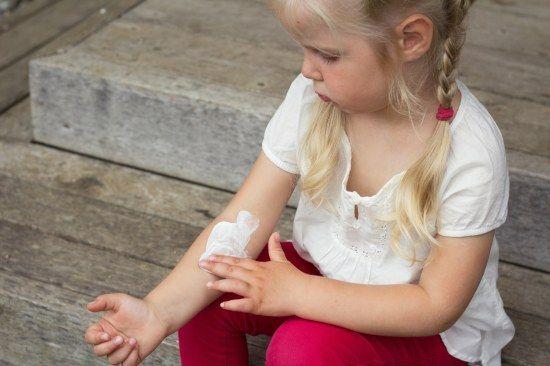Neurodermitis: Bei Kindern oft in Knie- und Ellenbeugen.
