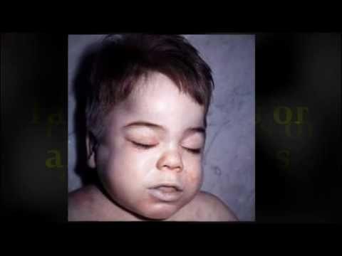 Sleep Apnea in Children - The Causes Behind It!