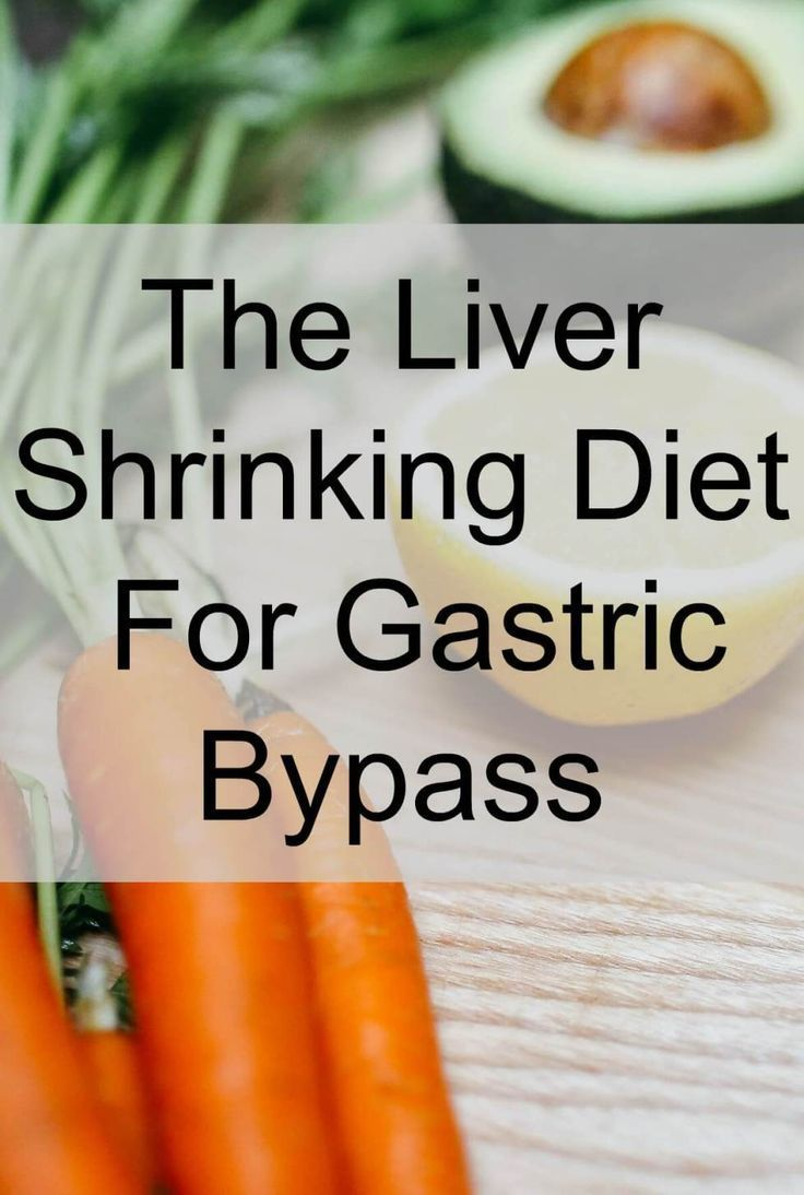Liver Shrinking Diet For Gastric Bypass Patients Days In Bed Liver Shrinking Diet Bariatric Eating Bariatric Recipes Sleeve Liquid Diet