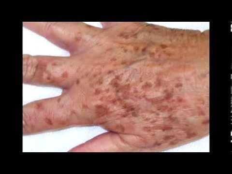 Remedios caseros para las manchas en las manos | Salud