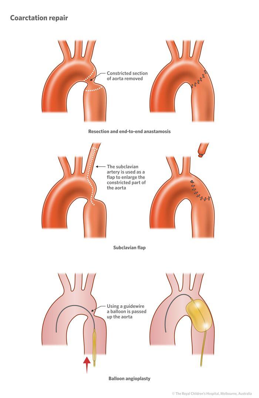 coarctation of the aorta | 5b_Coarctation_of_the_aorta