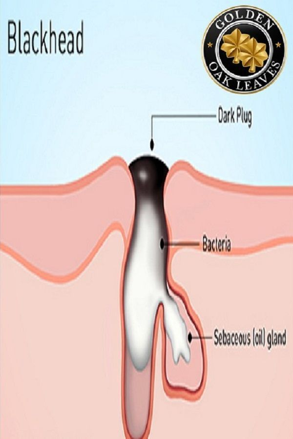 Blackhead Remover Vacuum - USB Rechargeable, FDA Approved