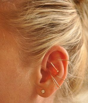 Auricular acupuncture is great for insomnia and to assist in weight loss & smoking cessation!