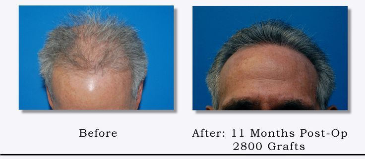 2800 Grafts Hair Transplant Before After By Dr Hair Transplant Rapid Hair Loss Reduce Hair Loss