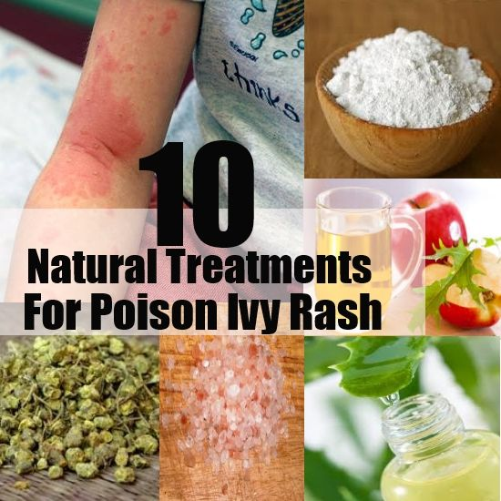 10 Amazing Natural Treatments For Poison Ivy Rash