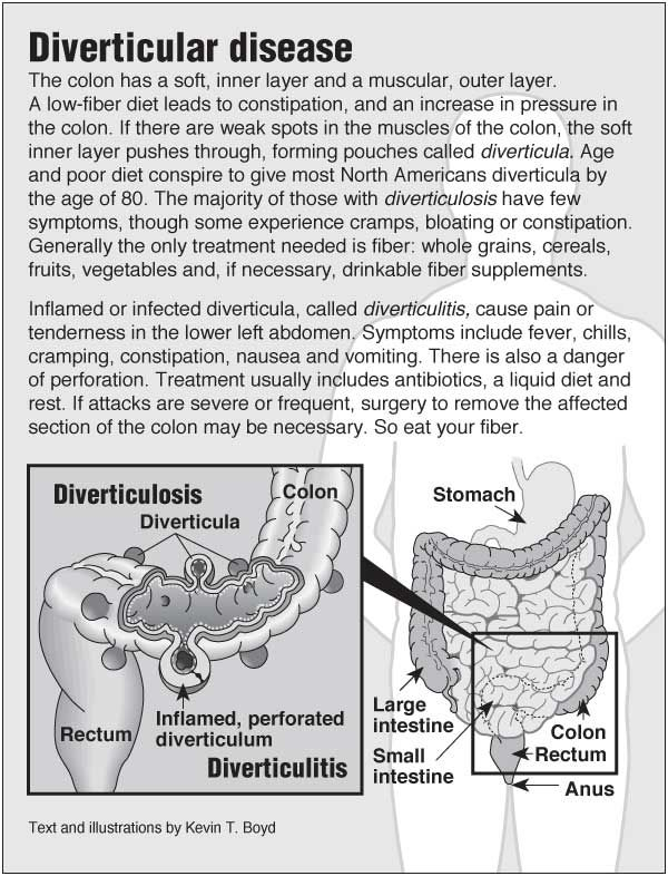 Information graphic about diverticulosis and diverticulitis with links to acupressure for related symptoms