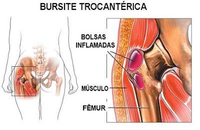 Fisioterapia Quintana: DOR NO QUADRIL, CUIDADO PODE SER BURSITE DE QUADRIL