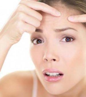 Tips Menghilangkan Jerawat Yang Bergerombol Di Kulit Wajah
