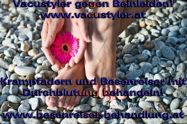 http://www.wickel.at/ cellulite wickel, wickel wien, wickel zum abnehmen