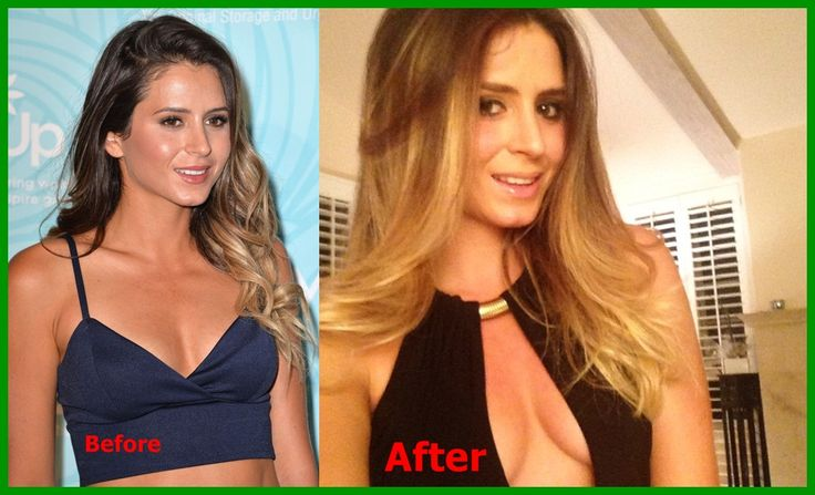 E Breast Implants Before And After Anastasia Ashley Breas...