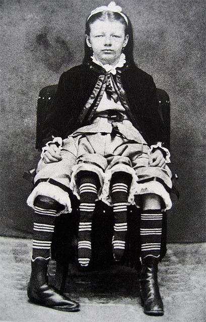 """""""1818's; Josephene Myrtle Corbin, the Four-Legged Woman, was born in Lincoln County, Tennessee in 1868. Rather than having a parasitic twin, Myrtle's extra legs resulted from an even rarer form of conjoined twinning known as dipygus, which gave her two complete bodies from the waist down. She had two small pelves side-by-side, and each of her smaller inner legs was paired with one of her outer legs. She could move the smaller legs but was unable to use them for walking."""