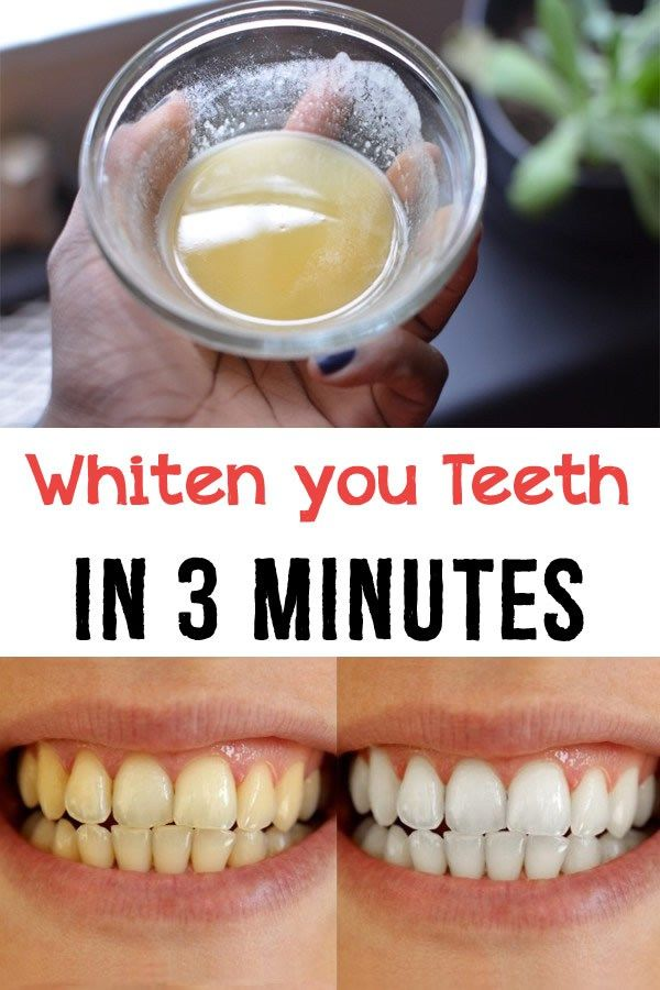 Whiten your teeth in 3 minutes - Diva Secrets