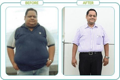 Before and after Bariatric surgery! #weightloss #instahealth #instamood #instalike #healthtips #instafollow #weightlossjourney #weightloss #beforeandafter #beforeandafterweightloss