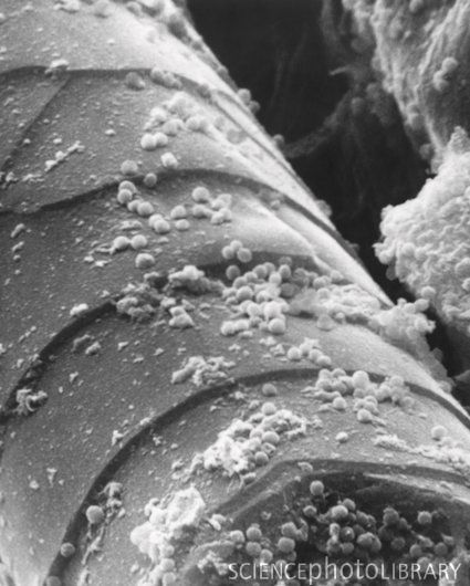 Bacteria on human hair   (Remember, folks, we are covered in beneficial bacteria that do a lot to protect us from infection.)