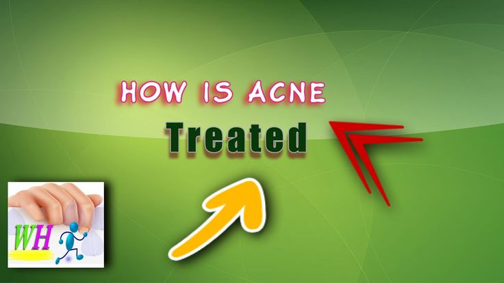 How Is Acne Treated 2, acne scar treatment, best acne treatment