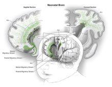 Científicos de varias instituciones españolas y de EE.UU. han identificado una población masiva de neuronas jóvenes, no reconocidas anteriormente, que migran en el cerebro humano durante los primeros meses de vida contribuyendo a la expansión del lóbulo frontal, una región estrechamente relacionada con funciones cognitivas y de ejecución. Errores en estas migraciones podrían ser responsables de algunos problemas neurológicos.