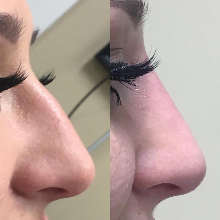 Non-surgical nose-job, using only #stylage #fillers ������. No surgery, mild pain, no down time, done under an hour. Contact me for a complementary consultation today ☎️6472399971.#fillers #nosurgery #nonsurgicalnosejob #nosejob #cosmetics #toronto #cosmetology #nopain #beautiful #nose #�� #���� http://tipsrazzi.com/ipost/1523470662467213862/?code=BUkdH7uFlom