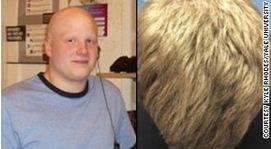 Nieuw medicijn alopecia areata onderzocht - Haarverzorging, Haaruitval, Haarproblemen, Haarziekten,   HAARSTICHTING.NL