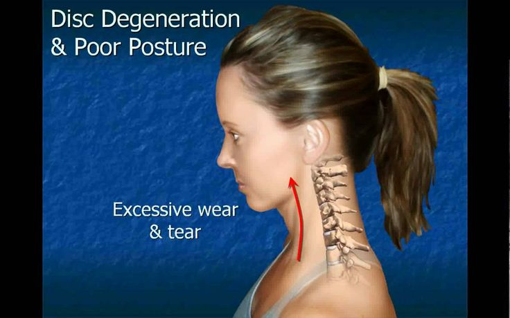 Cervical Disc Degeneration... Foster Family Chiropractic 419-238-6686