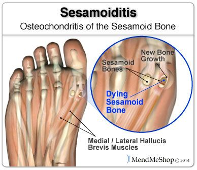 Sesamoiditis can sometimes involve a break or fracture to your sesamoid bone.