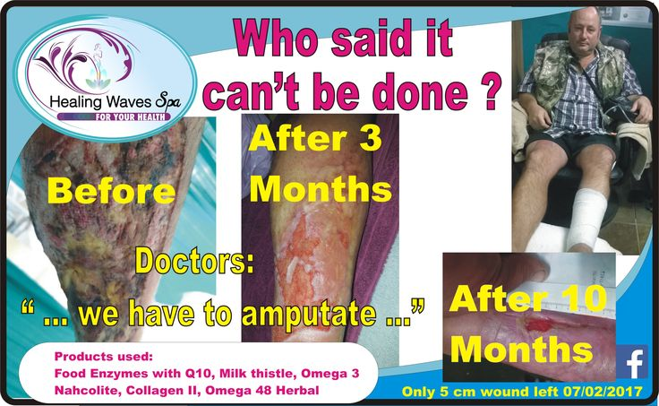 I told you long time ago of the person who ended up in a sink-hole with his motor cycle on top of him..., Well his progress is still on track, and within a few weeks he will finally be finished with his Healing Waves program. This was by far the longest case study ever. Tel 016 931-1939