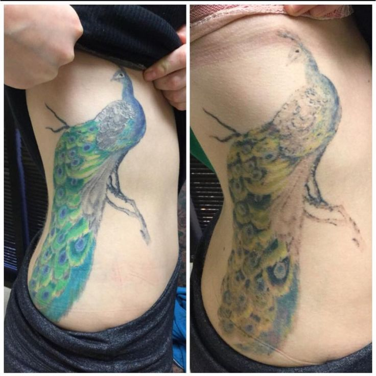 10 best images about before after photos on pinterest for How long is a tattoo removal session