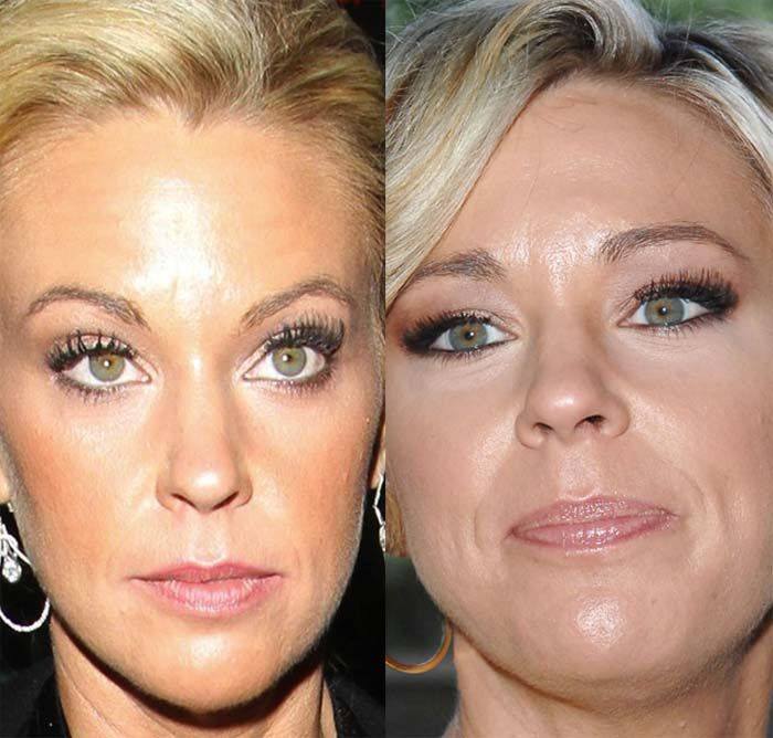 Want To Look So Incredible? See The Kate Gosselin Plastic Surgery