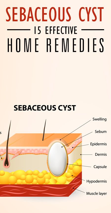 Are you suffering from sebaceous cysts? Do they keep recurring leaving you in pain? These cysts are harmless most of the times, but sometimes can get serious.
