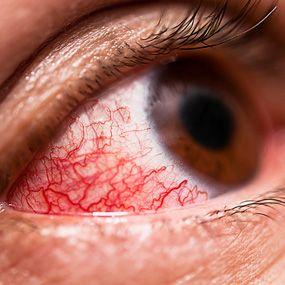 10 Pictures of Psoriatic Arthritis Symptoms