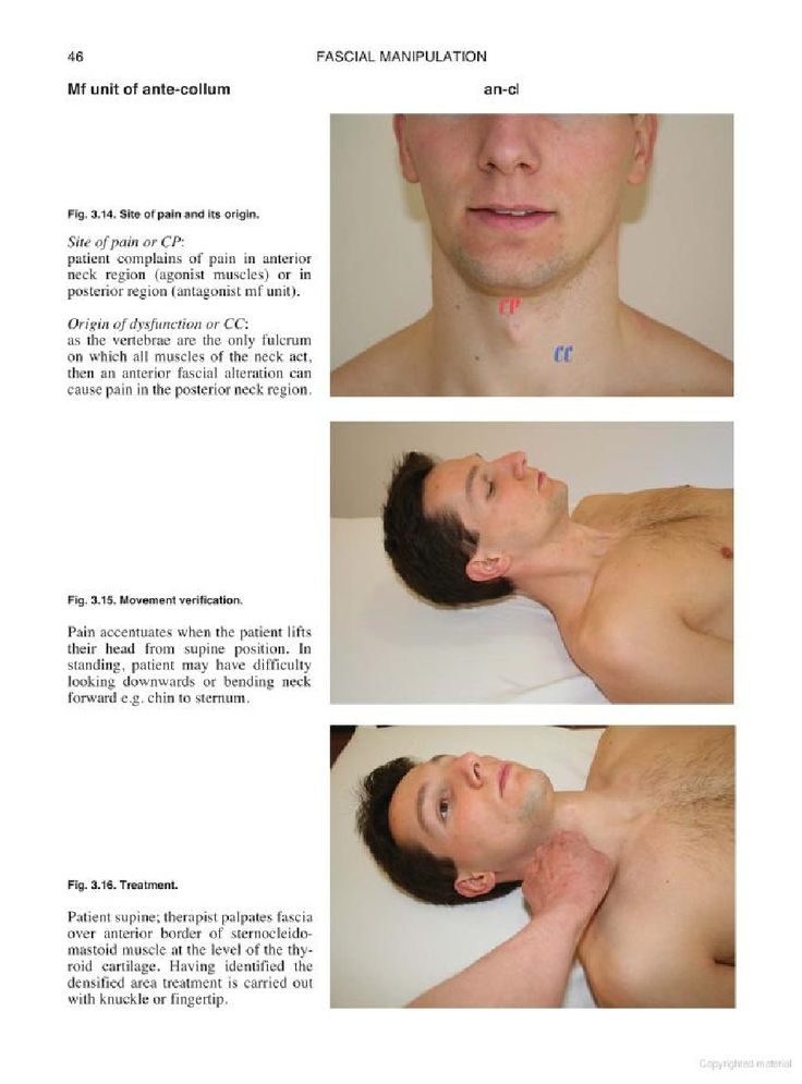 Fascial Manipulation. Practical Part