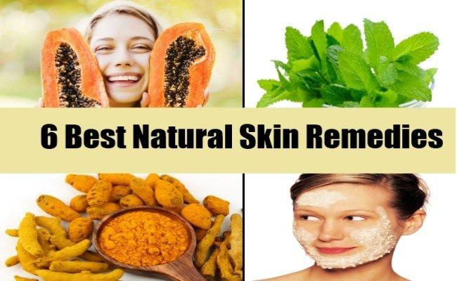 6 Best Natural Skin Remedies