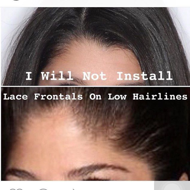 """So do not even try it anymore bc I'm about to start turning you right around. Most people know their foreheads are small yet still want frontals and when they see how they look installed they want to compare to those who do not have small foreheads. """"I ain't got time."""" So from now on you will lose your deposit and pay a fee showing up with low hairlines KNOWING you shouldn't be asking for a frontal. by invoguemehair"""