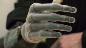 modular prosthetics