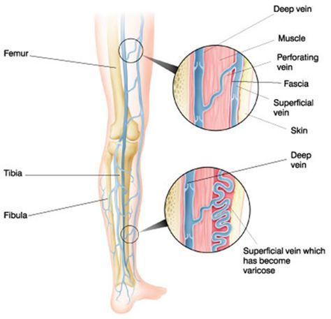 varicose veins and homeopathy treatment . Homeopathy has excellent treatment for varicose veins or swollen veins . Varicose veins or swollen legs painful legs with varicose ulcers  are effectively treated with homeopathy