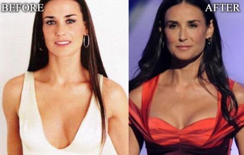 #plasticsurgery #celebrities #demimoore #hollywood #popular