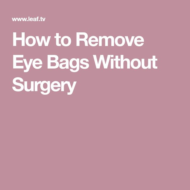 How to Remove Eye Bags Without Surgery