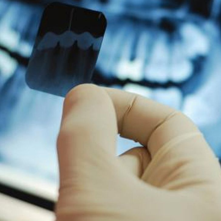 Dental Grants for Individuals are provided by the government